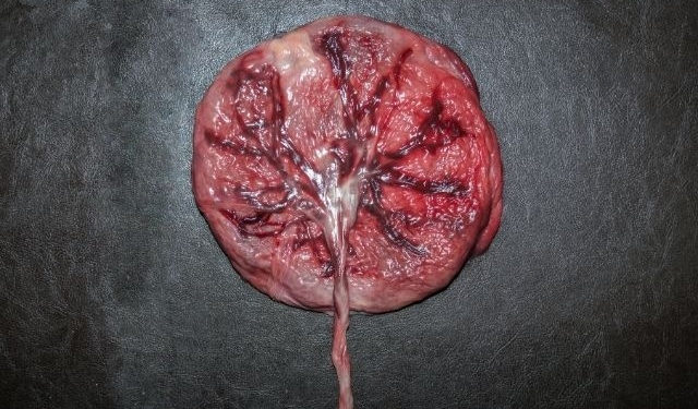 placenta eten